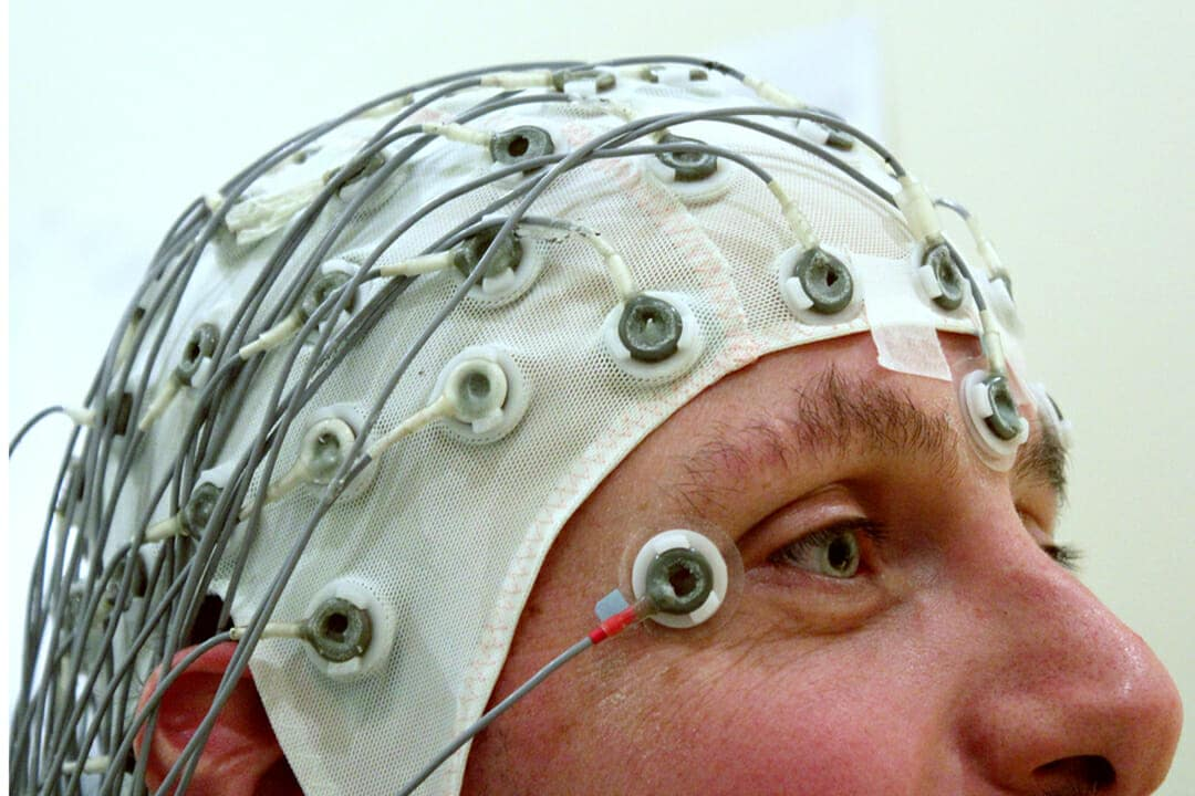 The Fight To End Epilepsy: An Interview with Dr  Orrin