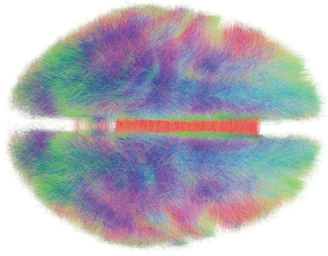 If Genes Dont Turn Off Brains Wiring >> You Are Your Connectome How The Brain S Wiring Makes Us Who